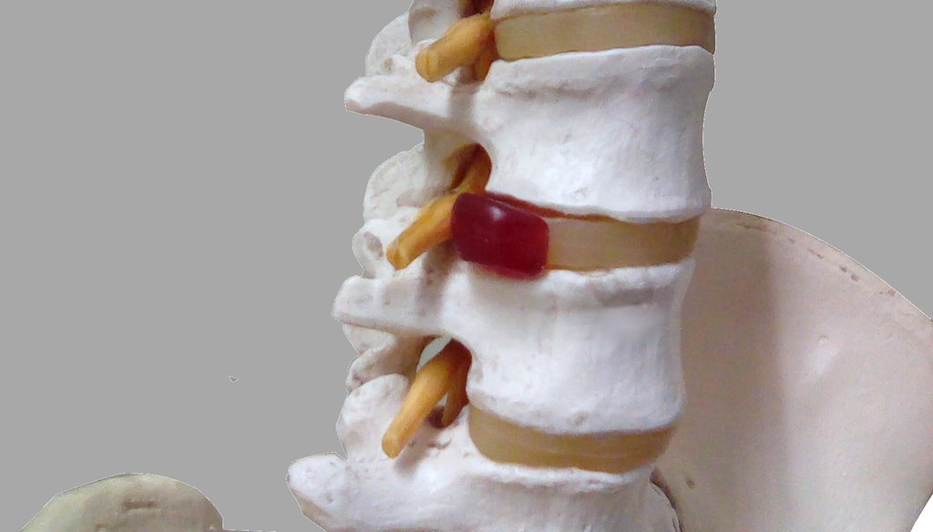 薬剤師の腰痛02